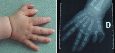 polydactylie